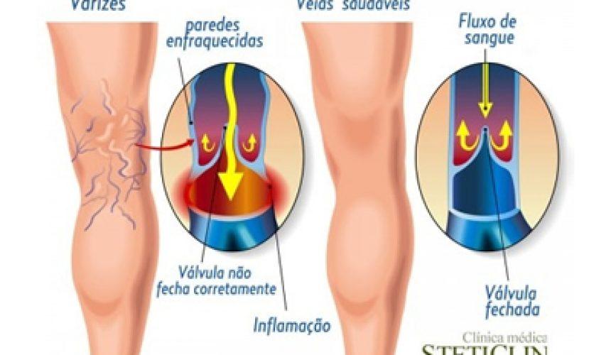 Varizes_nas_pernas
